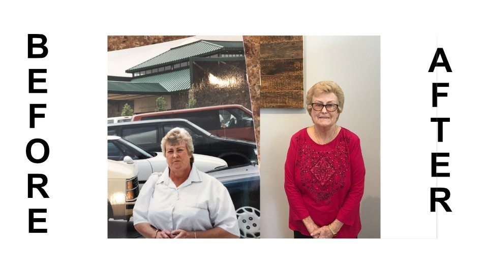 Weight loss clinic testimonial pictures