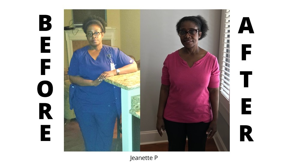 weight loss clinic before and after