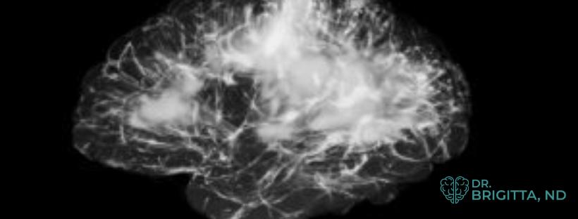 Brain health with Dr Brigitta, ND