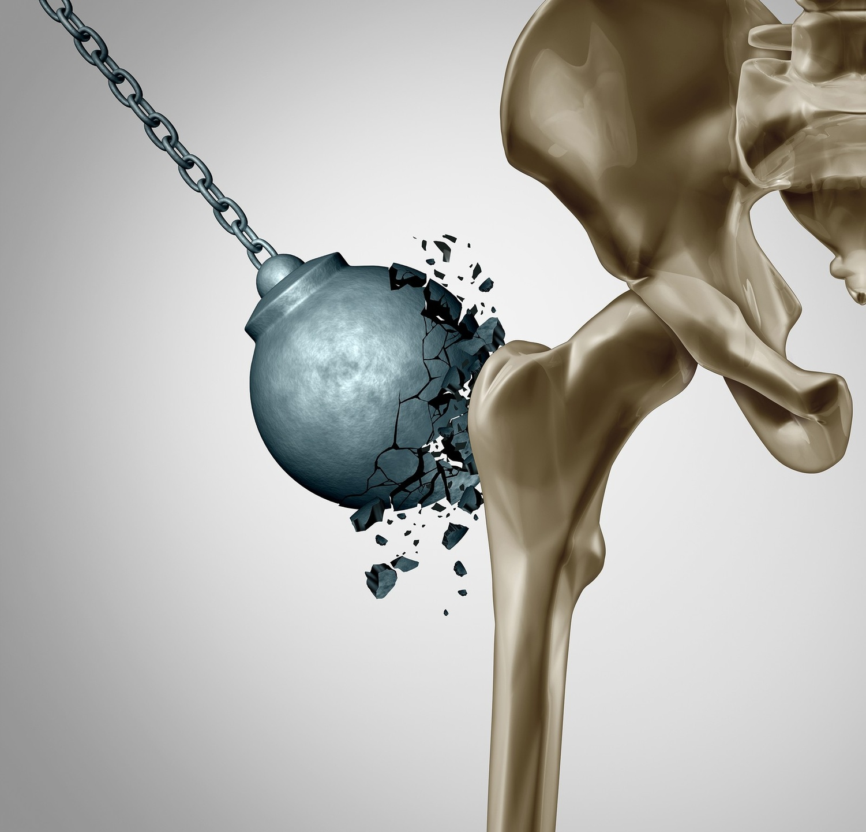 osteoporosis, menopause, bone health